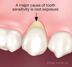 Why-are-my-teeth-sensitive-to-cold1